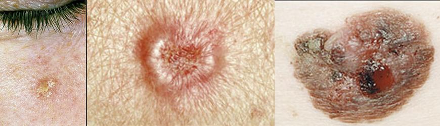 Risco da Cirurgia de Câncer de Pele
