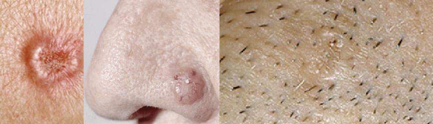 Tratamento de Câncer de Pele