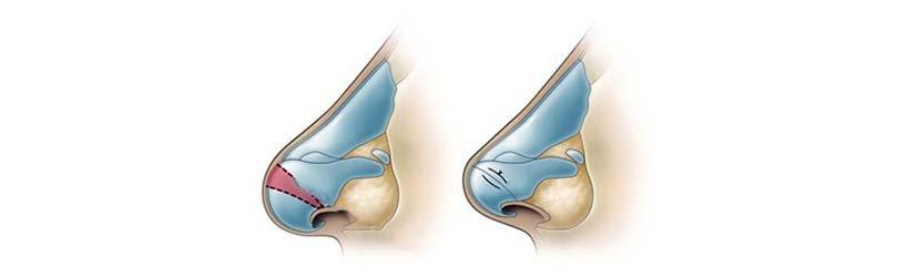 Cirurgia de Rinoplastia - Corte e Desmontagem