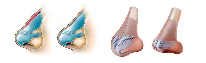 Cirurgia de Rinoplastia - Modelagem
