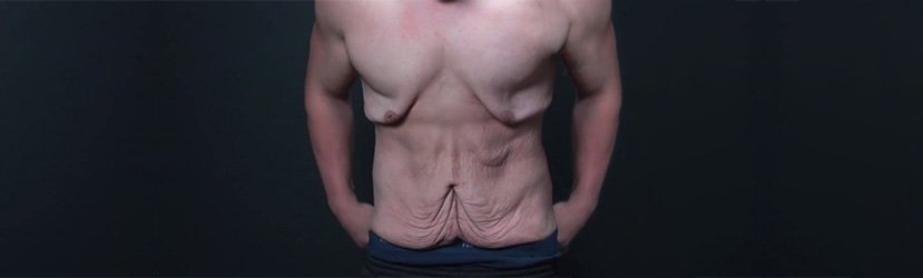 Cirurgia Pós-Bariátrica
