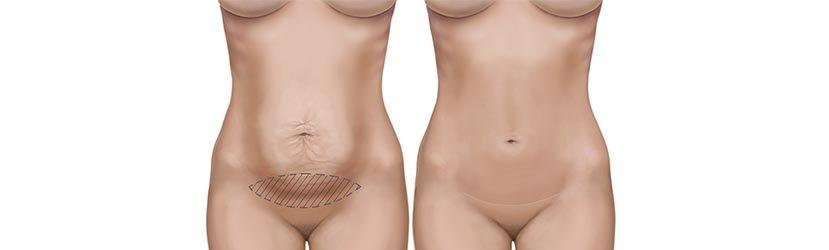 dermoliceptomia-abdominal
