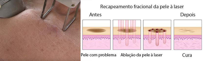 Tratamento Para Rugas Com Laser