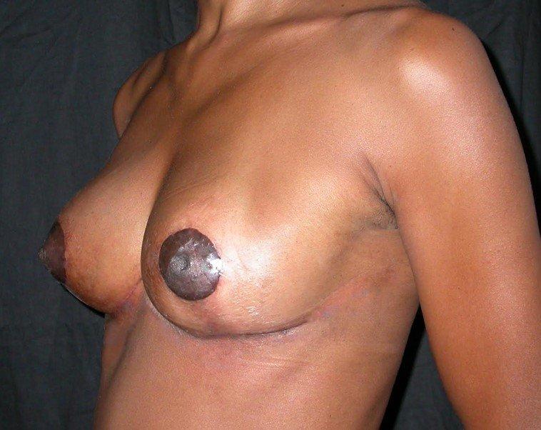 Cirurgia Plástica Sem Ponto