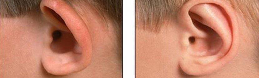 Resultados da Cirurgia de Orelha de Abano