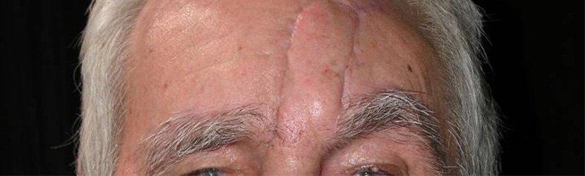 Cicatriz em Alçapão