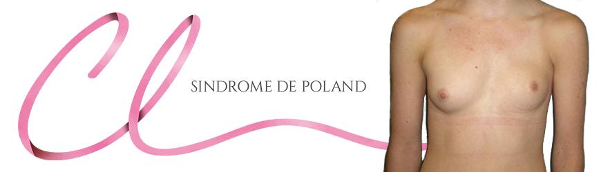 Cirurgia de Síndrome de Poland