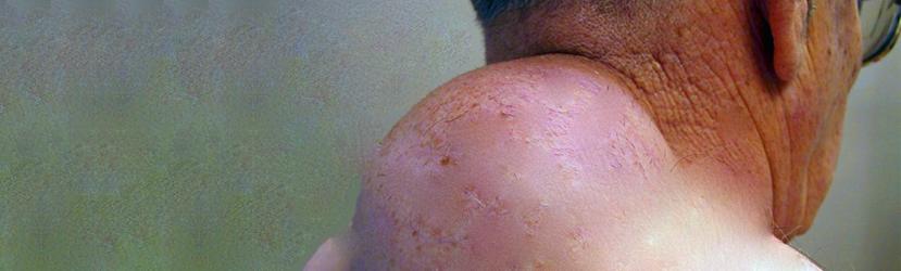 Lipomas Pleomórficos