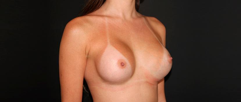 Troca dos Implantes Mamários