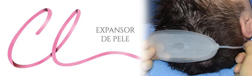 Cirurgia de Expansor de Pele