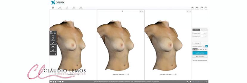 3D Para Cirurgia Plástica