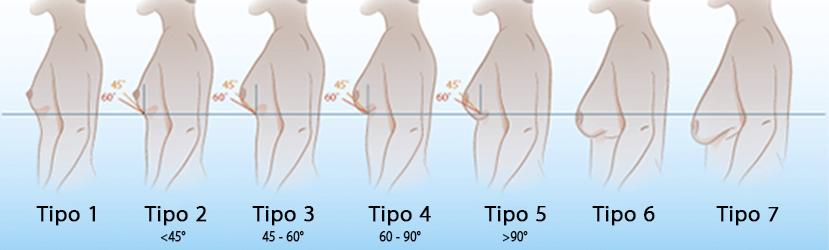 Tipos de Ginecomastia