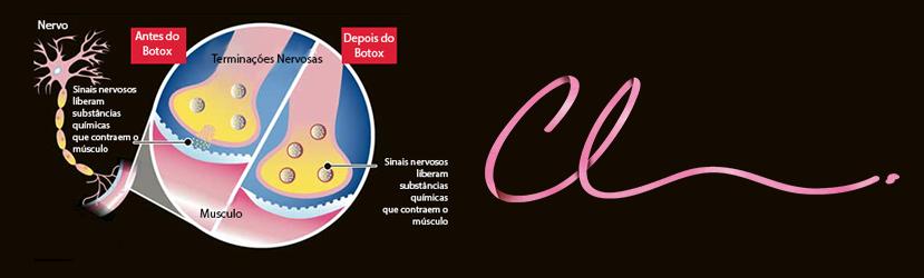 Botox - Como Funciona