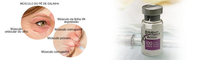 Ilustração dos Músculos no Procedimento Empregado