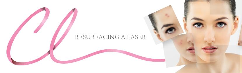 Resurfacing a Laser