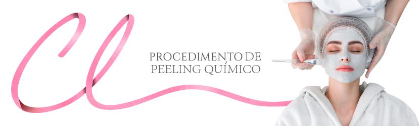 Procedimento de Peeling Químico