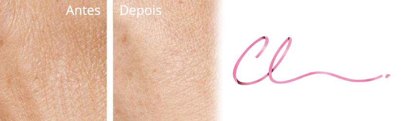 Ilustração da Pele Após Aplicação do Skinbooster