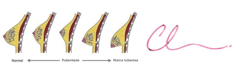 Ilustração das Alterações Anatômicas Durante o Envelhecimento da Mulher Com uma Mama Tuberosa