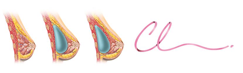 Posição do Implante Mamário Anterior ao Músculo Peitoral