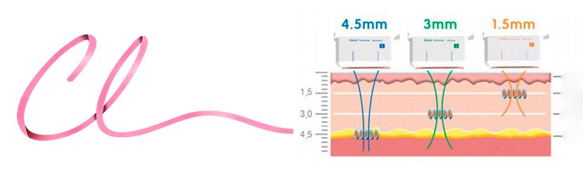 Ilustração Demonstrando a Penetração em Milímetros do Uthera de Acordo com a Ponteira do Ultrassom Utilizada