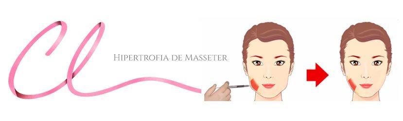Hipertrofia de Masseter