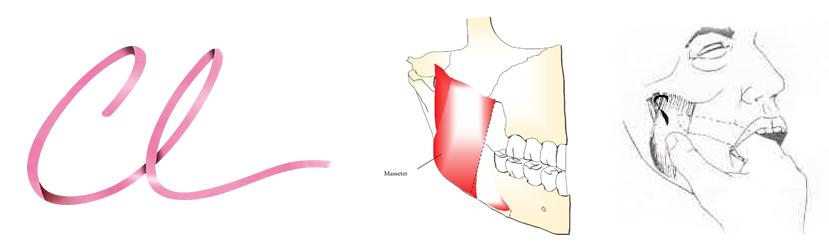 Exame Físico da Hipertrofia do Músculo Masseter