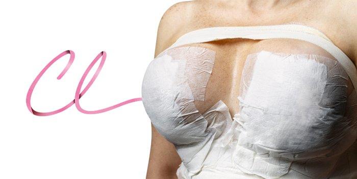 Diferentes Tipos de Cicatrizes Para Mamoplastia de Aumento