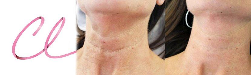 Ilustração dos Efeitos de uma Aplicação Única de Volite na Região Cervical