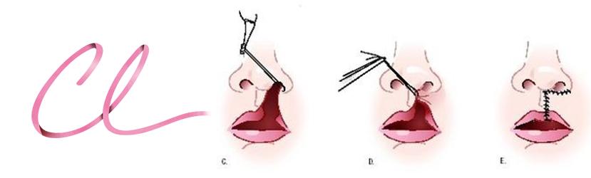 Ilustração da Cirurgia de Lábio Leporino