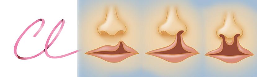 Ilustração de Tipos de Lábio Leporino