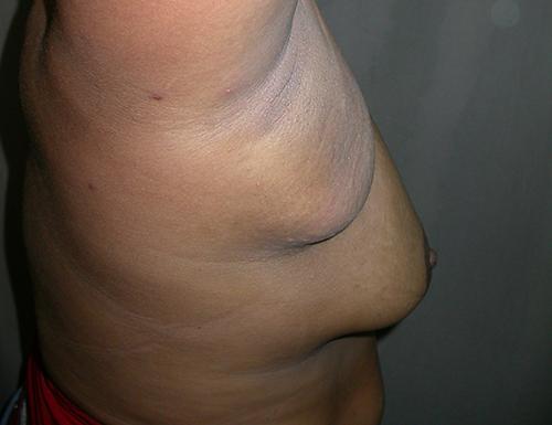 Cirurgia de Polimastia