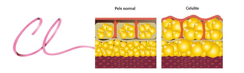 Ilustração Demonstrando a Pele Normal (a esquerda) e o Aspecto de Pele com Celulite (a direita)