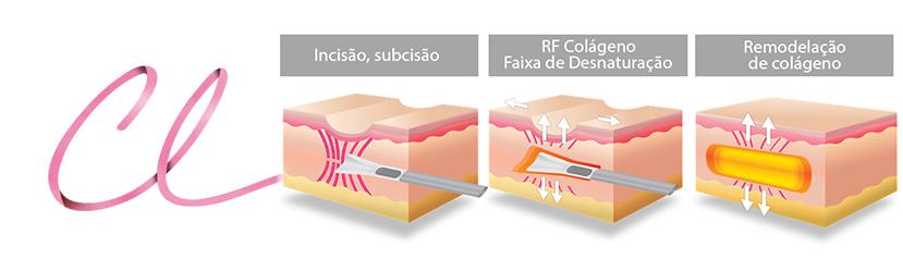 Ilustração Demonstrando a Técnica Utilizada e a Introdução de Medicação o Qual vai Estimular o Colágeno