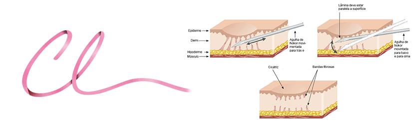 Ilustração Demonstrando a Técnica Utilizada no Procedimento