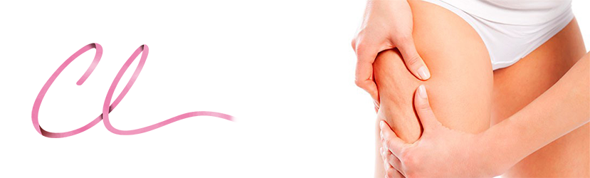 Ilustração Demonstrando o Aspecto Clássico da Celulite