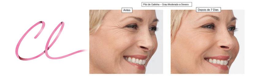 Ilustração da Atenuação dos Pés de Galinha Após a Aplicação de Botox