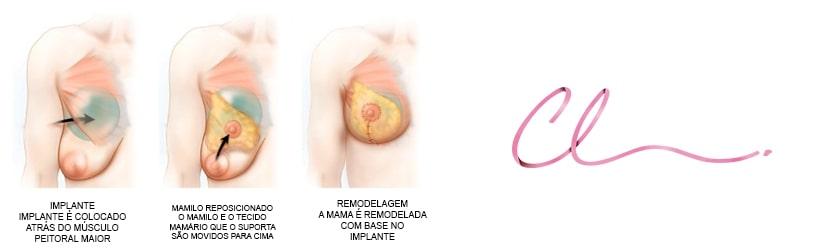 Ilustração da Cirurgia para Correção de Ptose Mamaria com Prótese
