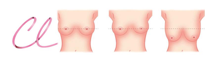Ilustração das Alterações na Forma Mamaria: Normal -Assimetria–-Ptose Severa da Mama