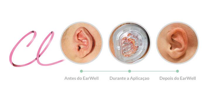 Curativo Earwell faz Correção da Orelha de Abano e Elimina a Cirurgia