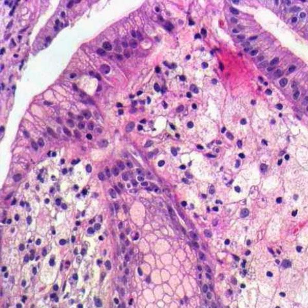 Ilustração Microscópica de um Xantelasma