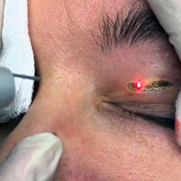 Tratamento Via Aplicação de Laser Sobre a Pálpebras Superior com Xantelasma