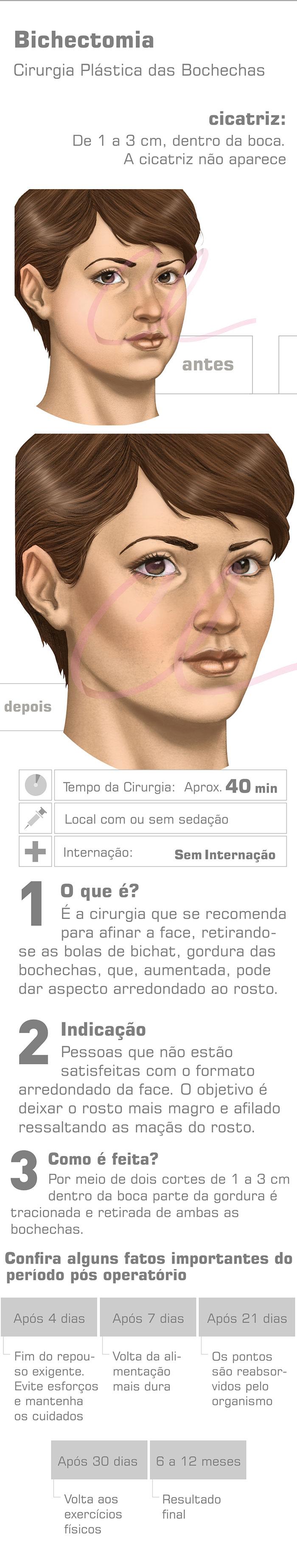 Cirurgia de Bichectomia
