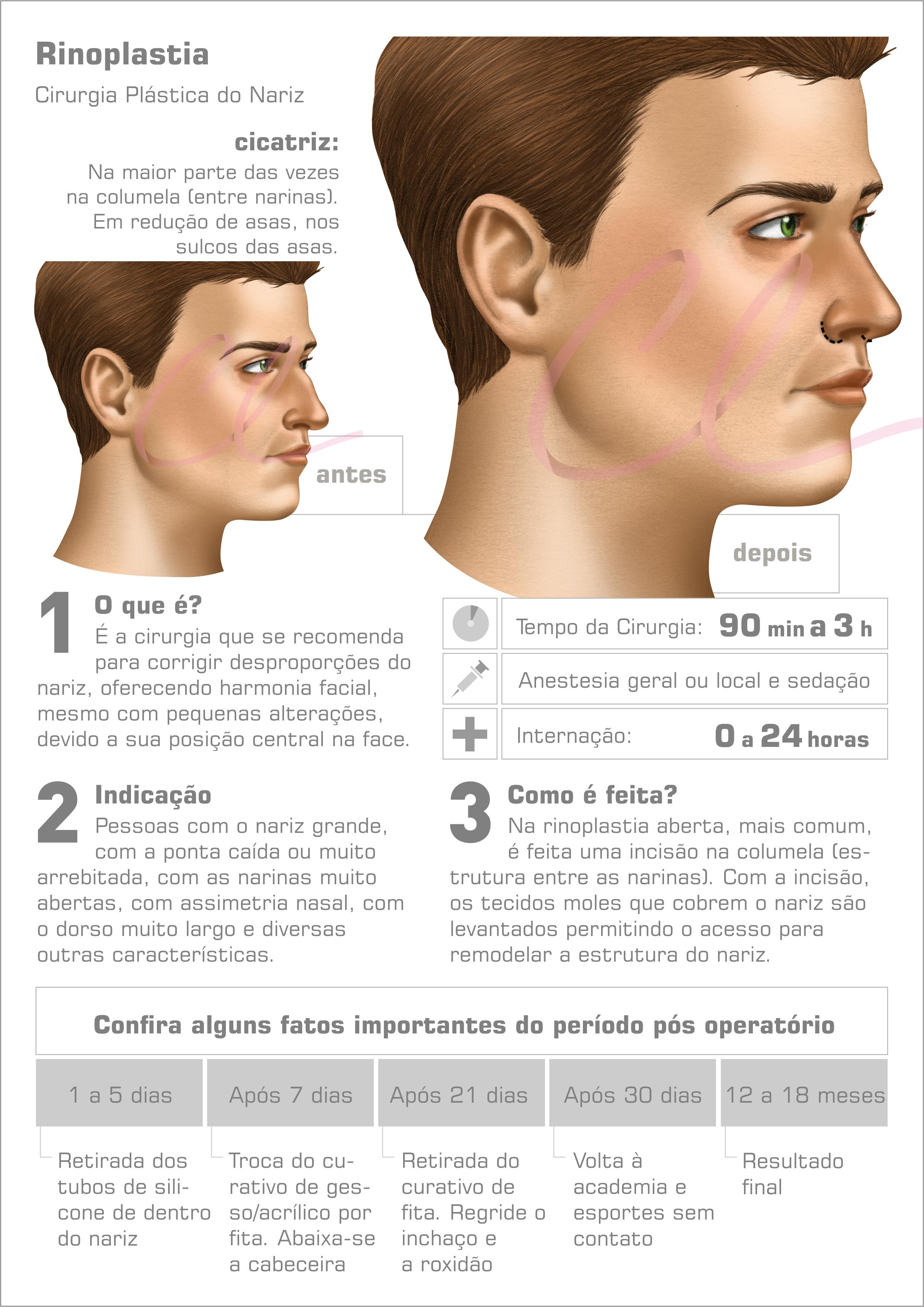Cirurgia de Rinoplastia