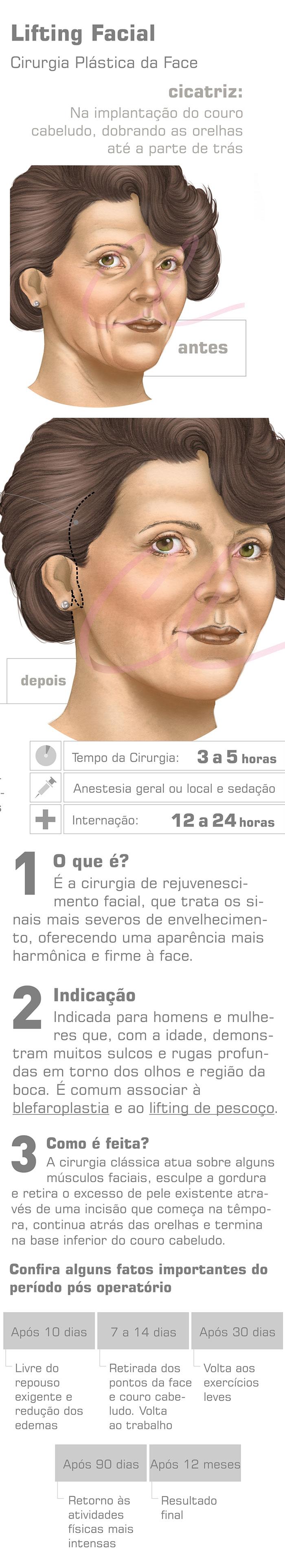 Lifiting Facial