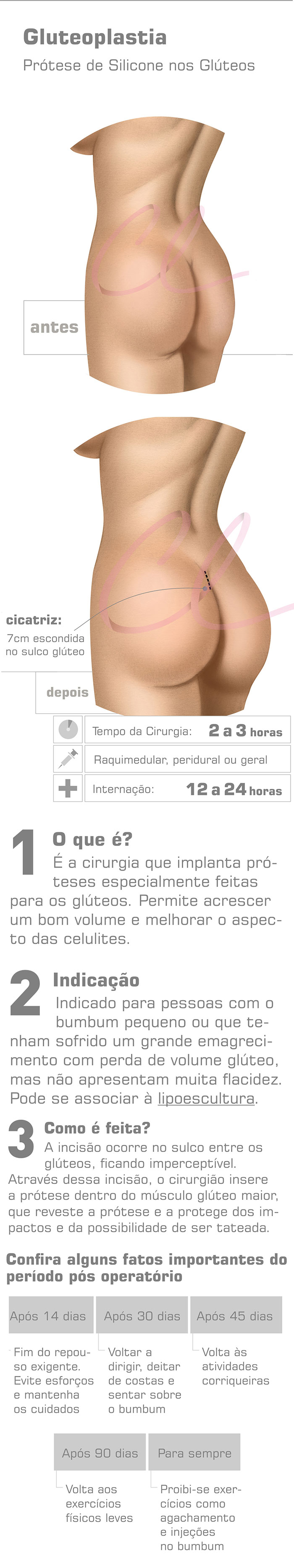 Cirurgia Plástica no Bumbum - Prótese de Glúteo
