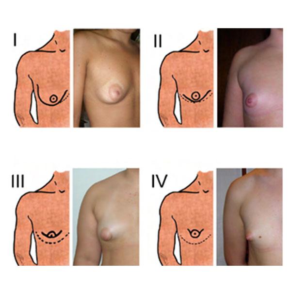 Ilustração da Classificação da Mama Tuberosa