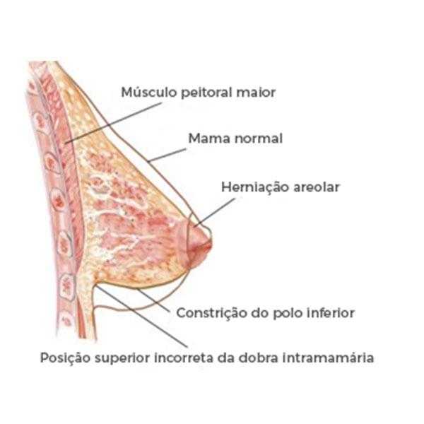 Ilustração das Alterações Anatômicas em uma Mama Tuberosa