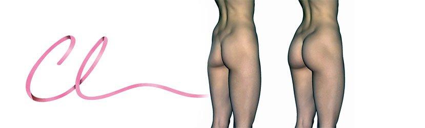 Ilustração de um Procedimento Demonstrando a Mudança no Comportamento Corporal Após a Gluteoplastia