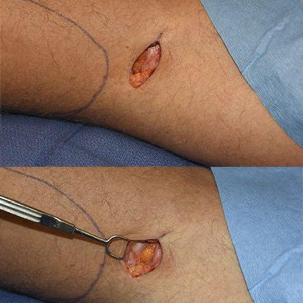 Cirurgia de Prótese de Silicone na Panturrilha