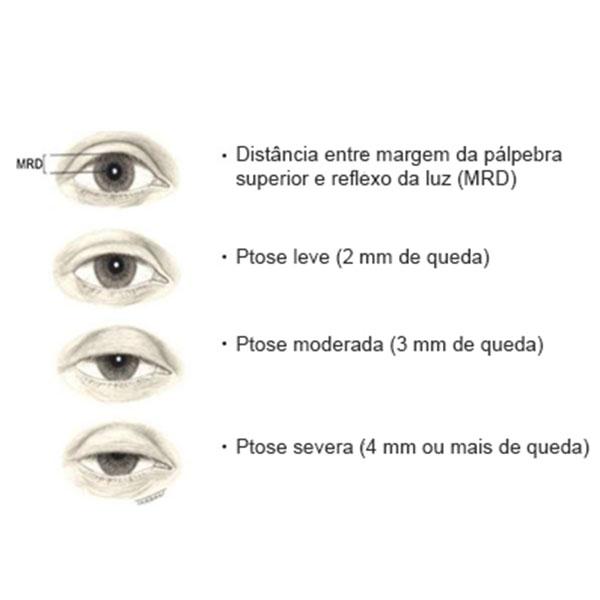 Tipos de Ptose Palpebral
